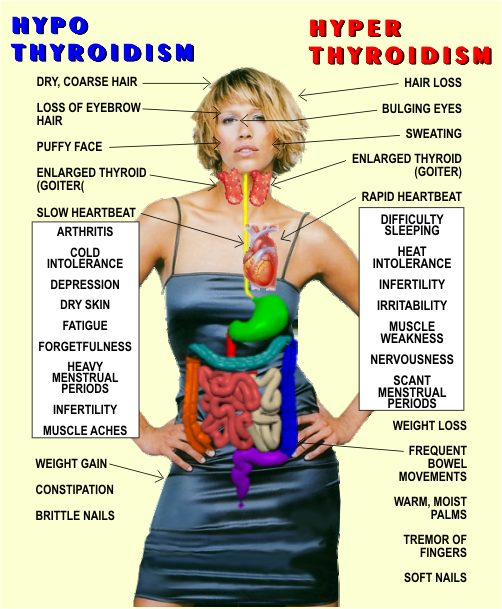 HYPOTHYROIDISM VS HYPERTHYROIDISM | THINK THYROID